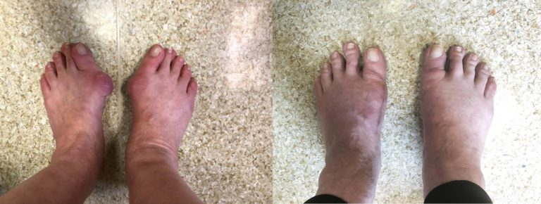 Zdjęcia przed i po korekcji haluksów (paluchów koślawych)