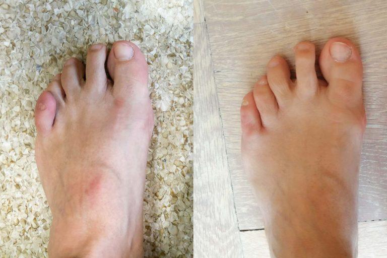 Palec nakładający się, zdjęcia przed i po korekcji